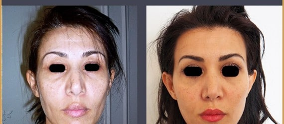 rajeunissement du visage et rafraichissement par injections d'acide hyaluronique aux pommettes et aux cernes, dr zwillinger