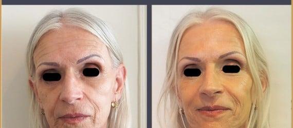 injections acide hyaluronique visage, lèvres, bouche, pommettes et botox, Dr Zwillinger Paris