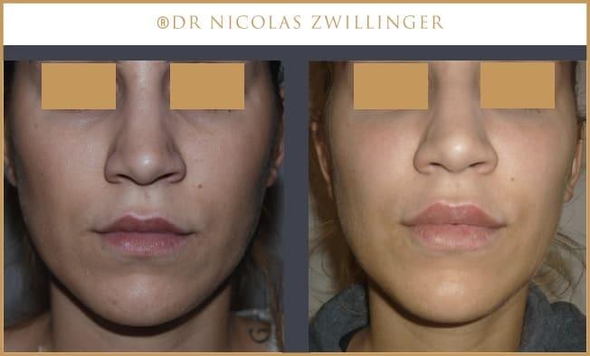 injection d'acide hyaluronique lèvres photos avant après