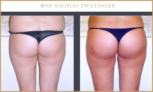 chirurgie des fessiers : implants Dr Zwillinger Paris
