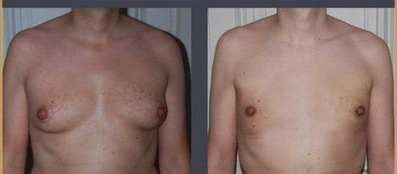 Seins chez homme: gynécomastie
