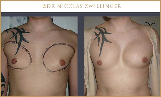 implants pectoraux homme photos avant après