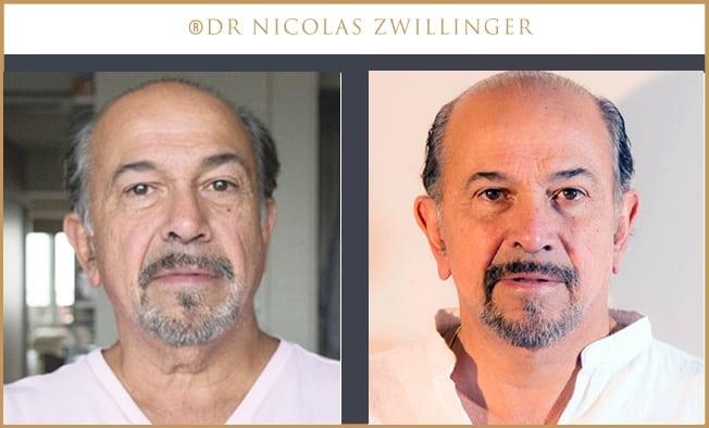 Lifting Homme   Chirurgie esthétique PARIS