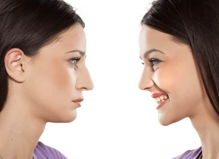 les questions à se poser avant de faire de la chirurgie esthétique
