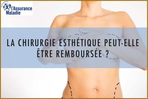 prise en charge après chirurgie de l'obésité de la chirurgie plastique, Paris, Dr N.Zwillinger