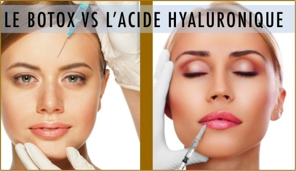 acide hyaluronique et botox
