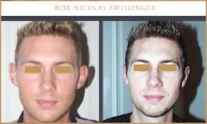otoplastie , chirurgie esthétique des oreilles décollées, photos avant après