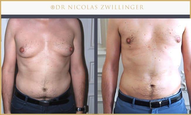 liposuccion du ventre et de la poitrine pour gynécomastie photos avant après