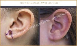 réparation des lobes d'oreilles photo avant après
