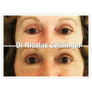 lipofilling des cernes sous les yeux Dr Nicolas Zwillinger