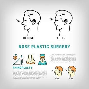 chirurgie esthétique nez