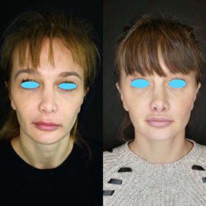 Implants de lèvres Dr Nicolas Zwillinger Paris